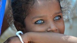 Это интересно 637: Удивительное разнообразие цвета глаз