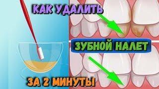 Как избавиться от ЗУБНОГО НАЛЕТА за 2 минуты Самое простое СРЕДСТВО от зубного камня Рецепт ЗДОРОВЬЯ